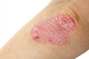 Schuppende Haut: Das löst Psoriasis aus
